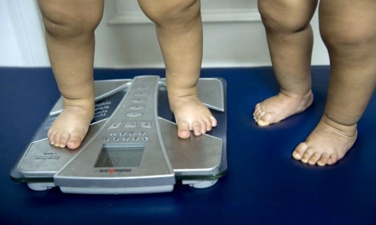 Childhood obesity the major risk factor for serious hip disease