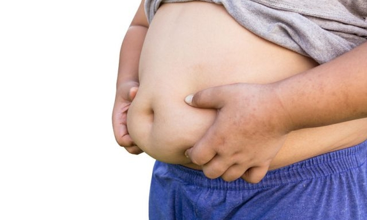 Troubling Trend: Childhood obesity continues to rise